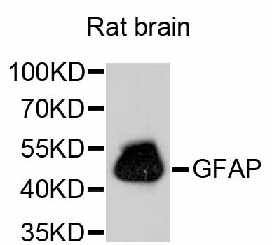 Western blot analysis of extracts of rat brain, using GFAP antibody. The secondary antibody used was an HRP Goat Anti-Rabbit IgG (H+L) at 1:10000 dilution. Lysates were loaded 25ug per lane and 3% nonfat dry milk in TBST was used for blocking.