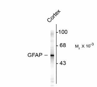 Western blot of rat cortex lysate showing specific immunolabeling of the ~50k GFAP protein.
