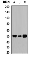 Western blot analysis of GFAP expression in HeLa (A); mouse brain (B); rat muscle (C) whole cell lysates.