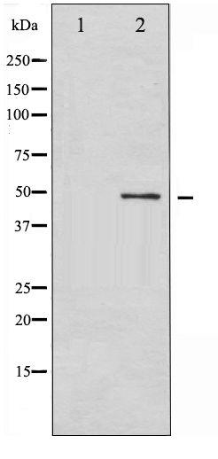 Western blot of GFAP phosphorylation expression in HeLa whole cell lysates,The lane on the left is treated with the antigen-specific peptide.
