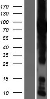 GFPT1 / GFAT Protein - Western validation with an anti-DDK antibody * L: Control HEK293 lysate R: Over-expression lysate