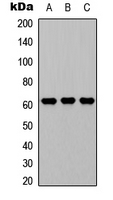 GGT1 / GGT Antibody - Western blot analysis of CD224 LC expression in A549 (A); NS-1 (B); PC12 (C) whole cell lysates.