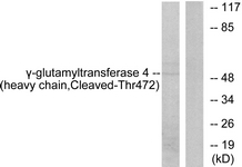 Western blot of extracts from Jurkat cells, treated with etoposide 25 uM 24h, using Gamma-glutamyltransferase 4 (heavy chain, Cleaved-Thr472) Antibody. The lane on the right is treated with the synthesized peptide.