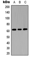Western blot analysis of GGT5 HC expression in A549 (A); NS-1 (B); H9C2 (C) whole cell lysates.