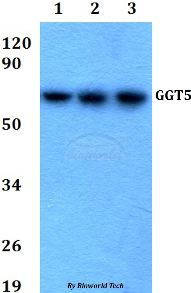 Western blot of GGT5 antibody at 1:500 dilution. Lane 1: A549 whole cell lysate. Lane 2: sp2/0 whole cell lysate. Lane 3: H9C2 whole cell lysate.