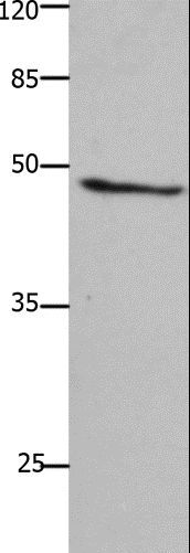 Western blot analysis of A549 cell, using GHSR Polyclonal Antibody at dilution of 1:1500.