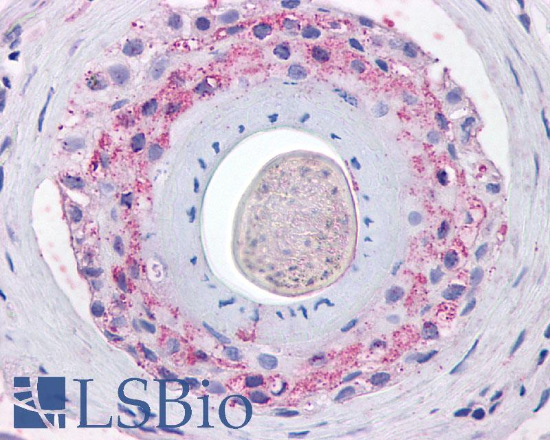 Anti-Ghrelin Receptor antibody LS-A581 IHC of human skin, hair follicle. Immunohistochemistry of formalin-fixed, paraffin-embedded tissue after heat-induced antigen retrieval.