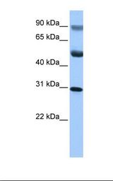 GID4 Antibody - HepG2 cell lysate. Antibody concentration: 1.0 ug/ml. Gel concentration: 12%.  This image was taken for the unconjugated form of this product. Other forms have not been tested.