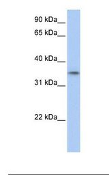 GID4 Antibody - Fetal muscle lysate. Antibody concentration: 1.0 ug/ml. Gel concentration: 12%.  This image was taken for the unconjugated form of this product. Other forms have not been tested.