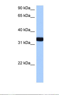 Hela cell lysate. Antibody concentration: 0.5 ug/ml. Gel concentration: 12%.  This image was taken for the unconjugated form of this product. Other forms have not been tested.