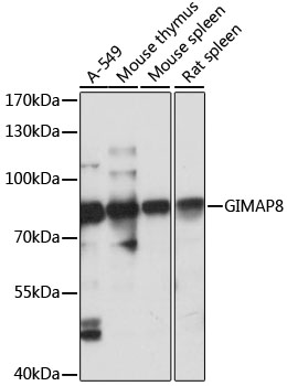 GIMAP8 Antibody - Western blot analysis of extracts of various cell lines, using GIMAP8 antibody at 1:1000 dilution. The secondary antibody used was an HRP Goat Anti-Rabbit IgG (H+L) at 1:10000 dilution. Lysates were loaded 25ug per lane and 3% nonfat dry milk in TBST was used for blocking. An ECL Kit was used for detection and the exposure time was 10s.