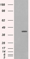 HEK293 overexpressing GIPC1 isoform 1 (RC216466) and probed with (mock transfection in first lane).