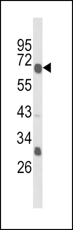 Western blot of GIPR Antibody in MDA-MB231 cell line lysates (35 ug/lane). GIPR (arrow) was detected using the purified antibody.