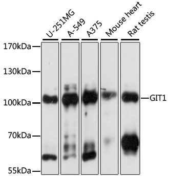 GIT1 Antibody - Western blot analysis of extracts of various cell lines, using GIT1 antibody at 1:1000 dilution. The secondary antibody used was an HRP Goat Anti-Rabbit IgG (H+L) at 1:10000 dilution. Lysates were loaded 25ug per lane and 3% nonfat dry milk in TBST was used for blocking. An ECL Kit was used for detection and the exposure time was 1s.