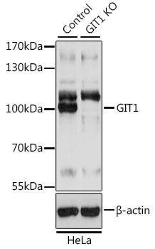 GIT1 Antibody - Western blot analysis of extracts from normal (control) and GIT1 knockout (KO) HeLa cells, using GIT1 antibody at 1:3000 dilution. The secondary antibody used was an HRP Goat Anti-Rabbit IgG (H+L) at 1:10000 dilution. Lysates were loaded 25ug per lane and 3% nonfat dry milk in TBST was used for blocking. An ECL Kit was used for detection and the exposure time was 1s.