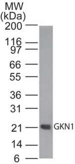 GKN1 / Gastrokine 1 Antibody - Western blot of GKN1 in human stomach tissue lysate using Polyclonal Antibody to Gastrokine 1/GKN1/CA11 at 0.1 ug/ml. Goat anti-rabbit Ig HRP secondary antibody, and PicoTect ECL substrate solution, were used for this test.
