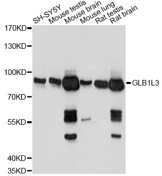 GLB1L3 Antibody - Western blot analysis of extracts of various cell lines, using GLB1L3 antibody at 1:1000 dilution. The secondary antibody used was an HRP Goat Anti-Rabbit IgG (H+L) at 1:10000 dilution. Lysates were loaded 25ug per lane and 3% nonfat dry milk in TBST was used for blocking. An ECL Kit was used for detection and the exposure time was 1s.
