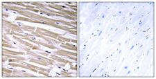 GLCT2 / B3GALT2 Antibody - Immunohistochemistry analysis of paraffin-embedded human heart tissue, using B3GALT2 Antibody. The picture on the right is blocked with the synthesized peptide.