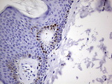 IHC of paraffin-embedded Human skin tissue using anti-GLI1 mouse monoclonal antibody. (Heat-induced epitope retrieval by 1 mM EDTA in 10mM Tris, pH8.5, 120°C for 3min).