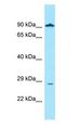 GLIPR1 / GLIPR antibody Western Blot of MCF7.  This image was taken for the unconjugated form of this product. Other forms have not been tested.