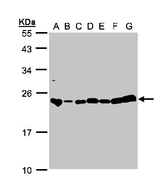 Sample (30g whole cell lysate). A:293T, B: A431 , C: H1299, D: HeLa S3 , E: Hep G2 . F: MOLT4 . G: Raji . 12% SDS PAGE. GLO1 / Glyoxalase I antibody diluted at 1:1000