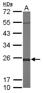 Sample (50 ug of whole cell lysate). A: Mouse brain. 12% SDS PAGE. GLO1 / Glyoxalase I antibody diluted at 1:1000.