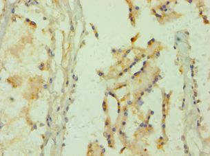 Immunohistochemistry of paraffin-embedded human prostate tissue using antibody at 1:100 dilution.