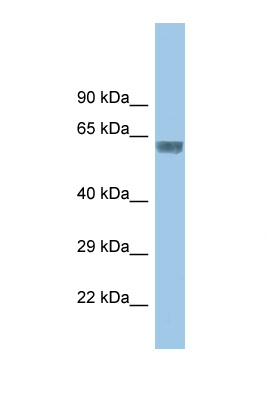 GLRA3 antibody LS-C145758 Western blot of Small Intestine lysate. Antibody concentration 1 ug/ml.  This image was taken for the unconjugated form of this product. Other forms have not been tested.