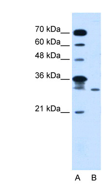 GLTPD2 antibody LS-C40492 Western blot of Jurkat lysate.  This image was taken for the unconjugated form of this product. Other forms have not been tested.