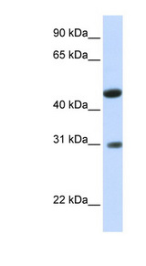 GLTPD2 Antibody - GLTPD2 antibody Western blot of Fetal Muscle lysate. This image was taken for the unconjugated form of this product. Other forms have not been tested.