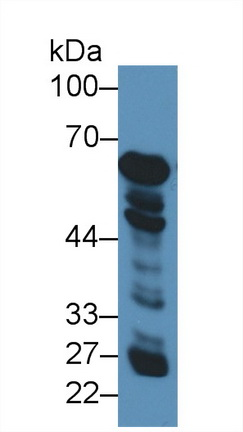 Western Blot; Sample: Human Liver lysate; Primary Ab: 3µg/ml Rabbit Anti-Human GDH Antibody Second Ab: 0.2µg/mL HRP-Linked Caprine Anti-Rabbit IgG Polyclonal Antibody