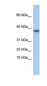GLYAT antibody LS-C102314 Western blot of HepG2 cell lysate.  This image was taken for the unconjugated form of this product. Other forms have not been tested.