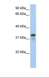 GLYATL2 Antibody - 721_B cell lysate. Antibody concentration: 1.0 ug/ml. Gel concentration: 12%.  This image was taken for the unconjugated form of this product. Other forms have not been tested.