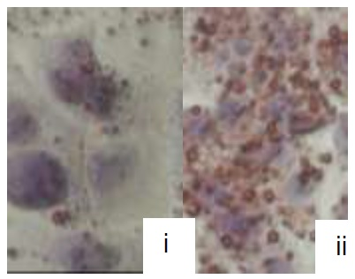 Oil Red Staining: HepG2 cells were untreated (i) or treated with 100 µM chloroquine (ii) and, after 48 hours, stained using Oil Red O lipid stain (LSBio, Cat. # LS-K586). Treatment with chloroquine induces steatosis, leading to a significant increase in lipid droplets and glycerol content of the cells.