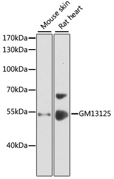Gm13125 Antibody - Western blot analysis of extracts of various cell lines, using GM13125 antibody at 1:1000 dilution. The secondary antibody used was an HRP Goat Anti-Rabbit IgG (H+L) at 1:10000 dilution. Lysates were loaded 25ug per lane and 3% nonfat dry milk in TBST was used for blocking. An ECL Kit was used for detection and the exposure time was 30s.