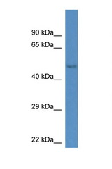 GM13178 antibody Western blot of Mouse Kidney lysate. Antibody concentration 1 ug/ml. This image was taken for the unconjugated form of this product. Other forms have not been tested.