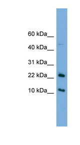 GM2A antibody Western blot of HeLa lysate. This image was taken for the unconjugated form of this product. Other forms have not been tested.