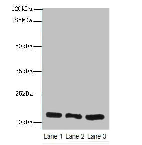 Western blot All Lanes: Ganglioside GM2 activator antibody at 10ug/ml Lane 1: Rat liver tissue Lane 2: Mouse stomach tissue Lane 3: Mouse small intestine tissue Secondary Goat polyclonal to Rabbit IgG at 1/10000 dilution Predicted band size: 21 kDa Observed band size: 21 kDa