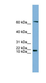 GM2A antibody Western blot of HT1080 cell lysate. This image was taken for the unconjugated form of this product. Other forms have not been tested.