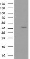 HEK293T cells were transfected with the pCMV6-ENTRY control (Left lane) or pCMV6-ENTRY GMDS (Right lane) cDNA for 48 hrs and lysed. Equivalent amounts of cell lysates (5 ug per lane) were separated by SDS-PAGE and immunoblotted with anti-GMDS.