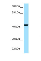 GMPPB Antibody - GMPPB antibody Western blot of Mouse Pancreas lysate. Antibody concentration 1 ug/ml.  This image was taken for the unconjugated form of this product. Other forms have not been tested.