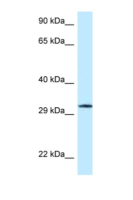 GMPR / GMPR1 antibody Western blot of Jurkat Cell lysate. Antibody concentration 1 ug/ml.  This image was taken for the unconjugated form of this product. Other forms have not been tested.