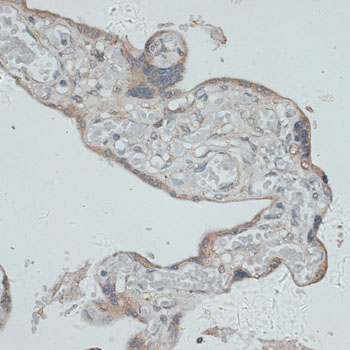 Immunohistochemistry of paraffin-embedded human placenta using GMPR antibody at dilution of 1:100 (40x lens).