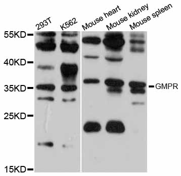 Western blot analysis of extracts of various cell lines, using GMPR antibody at 1:1000 dilution. The secondary antibody used was an HRP Goat Anti-Rabbit IgG (H+L) at 1:10000 dilution. Lysates were loaded 25ug per lane and 3% nonfat dry milk in TBST was used for blocking. An ECL Kit was used for detection and the exposure time was 30s.