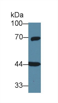 Western Blot; Sample: Rat Cerebrum lysate; Primary Ab: 1µg/ml Rabbit Anti-Human GNa11 Antibody Second Ab: 0.2µg/mL HRP-Linked Caprine Anti-Rabbit IgG Polyclonal Antibody