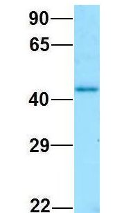 GNA11 antibody Western Blot of Human Fetal Kidney. Antibody Dilution: 1.0ug/ml. Antibody dilution: 1 ug/ml.  This image was taken for the unconjugated form of this product. Other forms have not been tested.