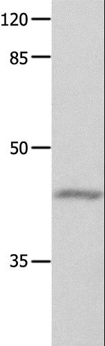 Western blot analysis of Mouse eyes tissue, using GNA11 Polyclonal Antibody at dilution of 1:550.