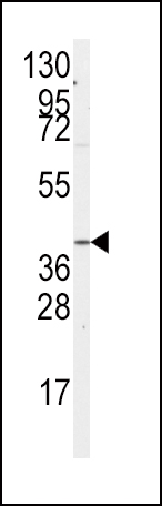 Western blot of anti-GNA12 Antibody (S67) in A2058 cell line lysates (35 ug/lane). GNA12(arrow) was detected using the purified antibody.