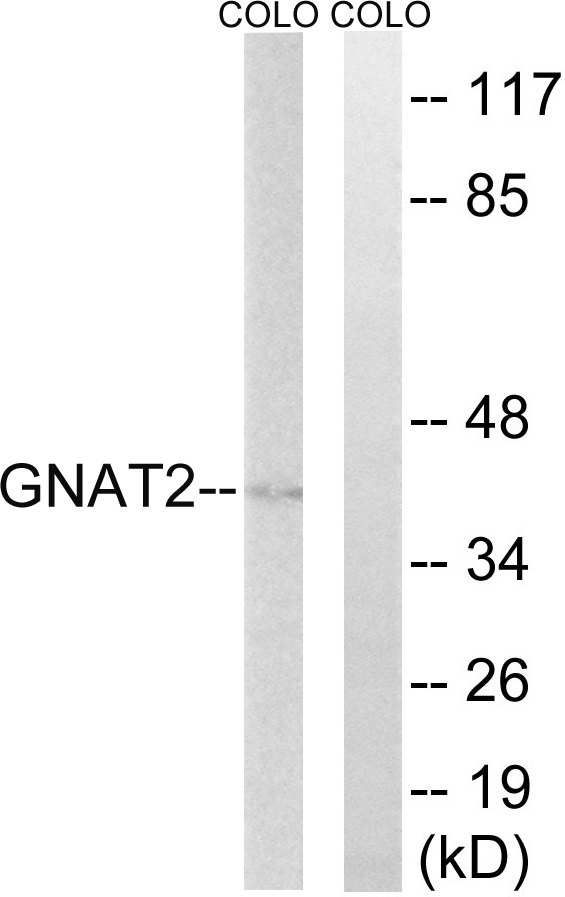 Western blot analysis of lysates from COLO cells, using GNAT2 Antibody. The lane on the right is blocked with the synthesized peptide.