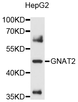 Western blot analysis of extracts of HepG2 cells, using GNAT2 antibody at 1:1000 dilution. The secondary antibody used was an HRP Goat Anti-Rabbit IgG (H+L) at 1:10000 dilution. Lysates were loaded 25ug per lane and 3% nonfat dry milk in TBST was used for blocking. An ECL Kit was used for detection and the exposure time was 15s.